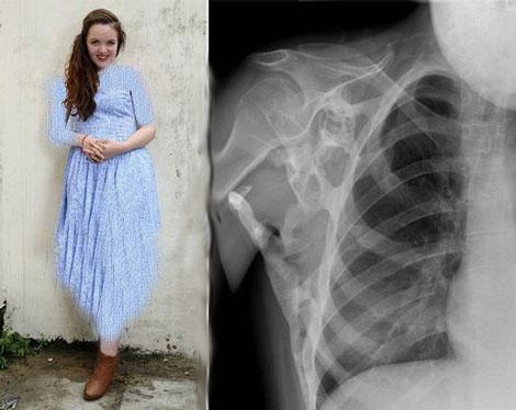 سندروم عجیب قفل کردن دختر 18 ساله (عکس)