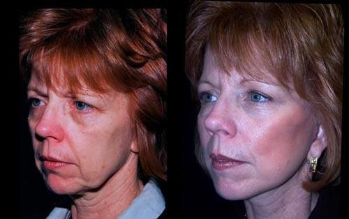 عکسهای دیدنی از قبل و بعد از عمل فیس لیفتینگ