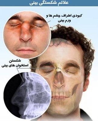 دلیل شکستگی بینی و روش درمان آن!!