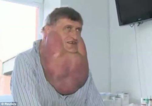 برداشتن تومور شش کیلویی عجیب این مرد +(عکس)
