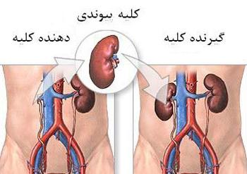 درمان بیماری مزمن کلیه - پزشکی و سلامتی
