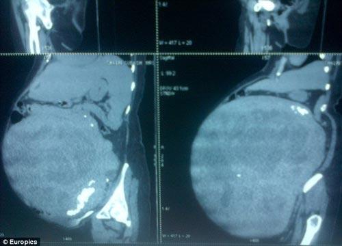 بزرگترین تومور دنیا در بدن خانم هندی برداشته شد (عکس)