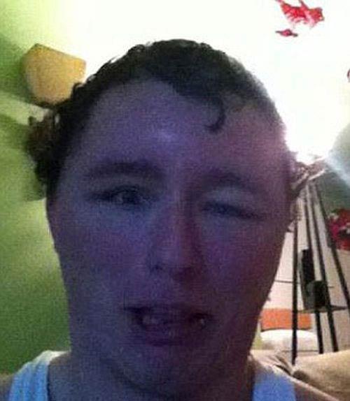تغییر چهره ترسناک این پسر به خاطر آلرژی +عکس