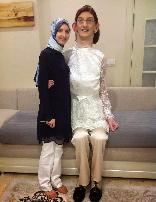 این دختر ترک درازترین دختر جهان شد +عکس
