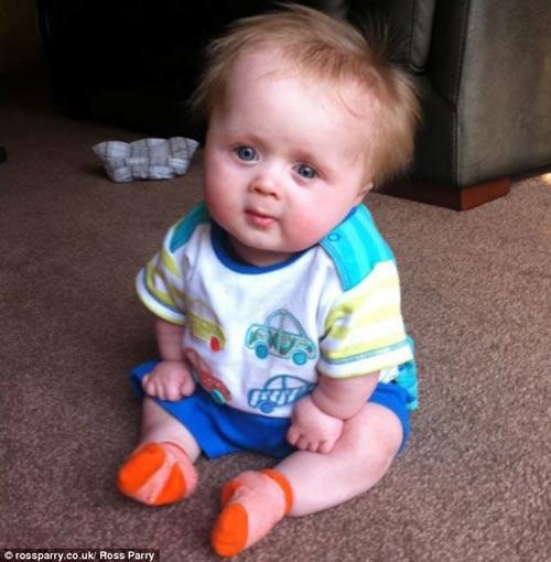 پسر بچه بانمک مبتلا به یک کوتولگی نادر + عکس
