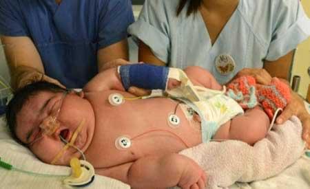 تصاویر دیدنی از رکورد چاقترین نوزادان دنیا