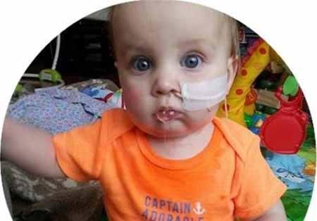 پسر بچه ای که اصلا نمی تواند دهانش را باز کند + عکس
