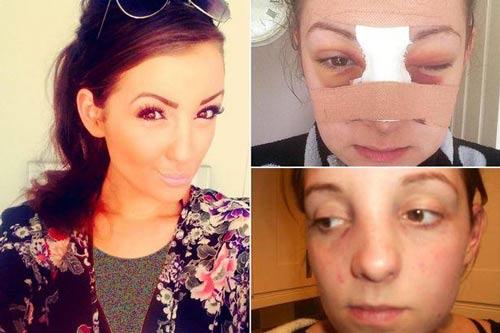 شهرت و زیبا شدن دختر جوان بعد از کتک خوردن
