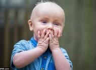 پسری که نمی تواند تا آخر عمرش پلک بزند + عکس