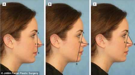بررسی جذاب ترین شکل بینی برای یک زن جوان + عکس