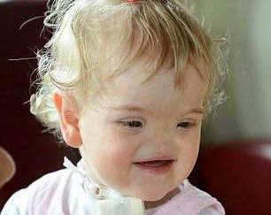 این دختر زیبایی که دماغ ندارد +عکس
