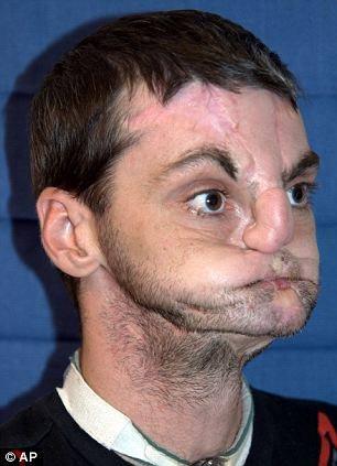 ترمیم صورت مردی با چهره از هم پاشیده و وحشتناک + عکس