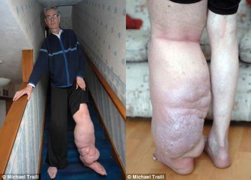پای عجیب این مرد همیشه در حال رشد است +عکس