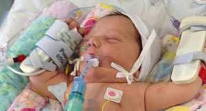 به دنیا آمدن کودکی با قلبی برعکس در قفسه سینه اش