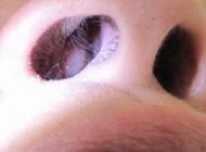 از علائم تا درمان پولیپ بینی