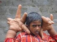 پسربچه 8 ساله هندی با دست های غول آسا + عکس