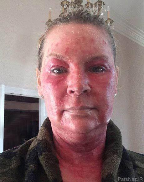 نتیجه وحشتناک لیزر درمانی صورت خانم ثروتمند برای زیبایی