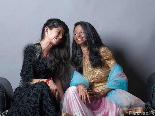 ورود قربانیان اسید پاشی به دنیای مد و فشن + عکس
