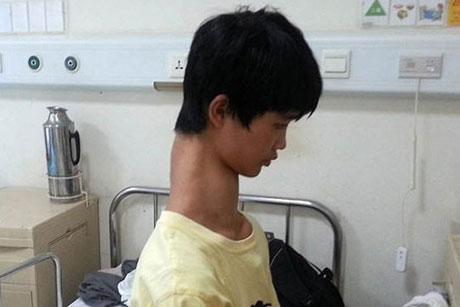 زندگی بسیار دردناک پسری با گردن دراز + عکس