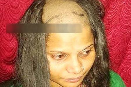 کچل شدن دختر بیچاره به وسیله برادرش + عکس