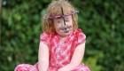 دختری با صورت از هم پاشیده و بدنی عجیب + عکس