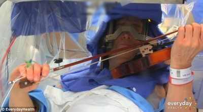 انجام عمل مغز و نواختن ویولن در حین عمل توسط بیمار + عکس