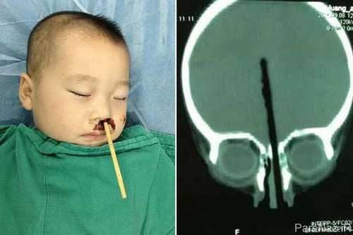 فرو رفتن چوب غذا در مغز کودک 2 ساله + عکس