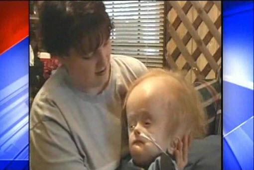 پسربچه 12 ساله بدون مغز درگذشت + عکس
