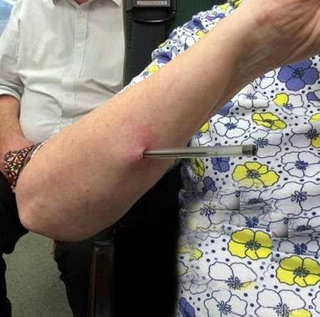حمله وحشیانه با خودکار به دست خانم 66 ساله + عکس