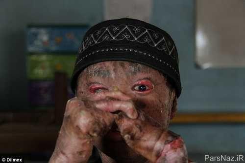 عکس های وحشتناک از پسر مارمولکی