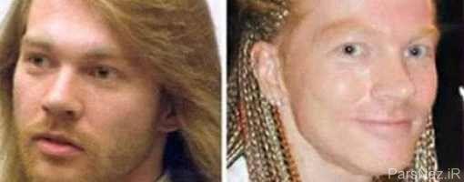 بدترین جراحیهای زیبایی در میان ستارگان هاليوودی + عکس