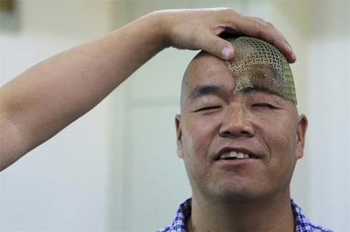ترمیم جمجمه یک مرد چینی با استفاده از فناوری سه بعدی