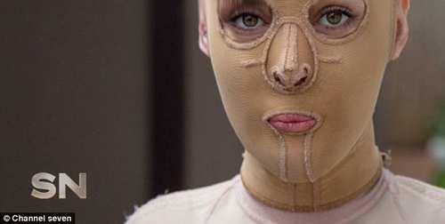 عکس های تکان دهنده از جراحی پلاستیک صورت سوخته زن