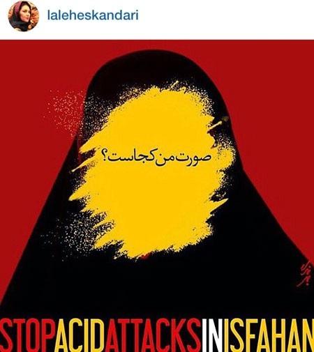 چهره های سرشناس پس از اسید پاشیهای اصفهان