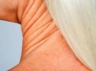 به چه نحوی از افتادگی پوست گردن مان جلوگیری کنیم؟