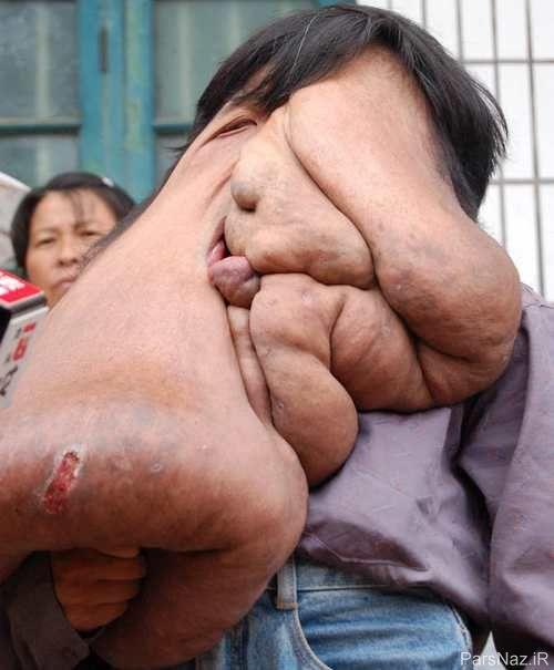 تصاویر غم انگیز از دومین مرد چینی با صورت آویزان و ترسناک