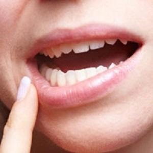 علت ها و علائم، تشخیص و درمان آفت دهان