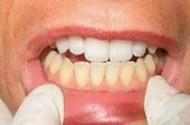سفید کردن دندان ها به کمک مواد طبیعی