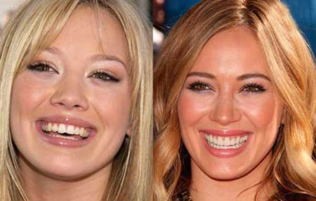 ستاره های هالیوودی با دندانهایی مصنوعی + عکس