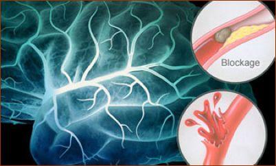 روش های مقابله با سکته مغزی