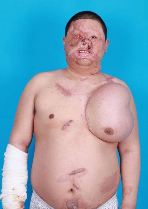 برق گرفتگی موجب رشد صورت جدید در سینه مردی شد!+عکس