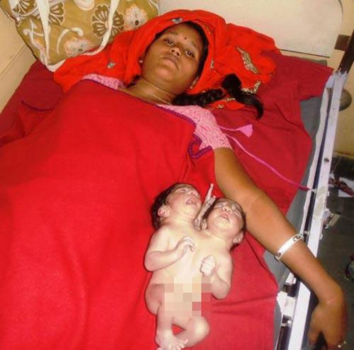 مادر هندی نوزاد دو سر زایید!+عکس