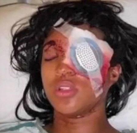 زن بارداری با شلیک پلیس آمریکا بینایی خود را از دست داد! + عکس