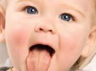 تشخیص بیماری از روی زبان افراد