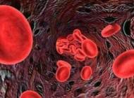 انواع سرطان خون, علایم سرطان خون و طریقه درمان