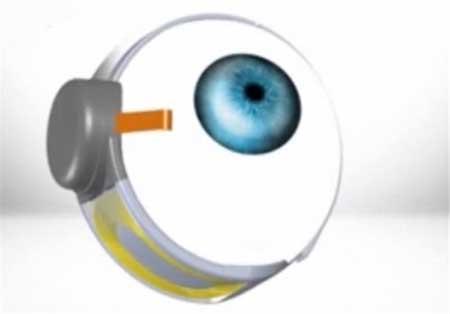 زنی که با چشم مصنوعی بینا شد!+عکس