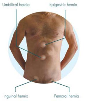 خطرات جراحی فتق چیست؟