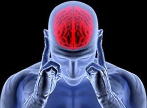 آلودگی هوا عامل اصلی سکته ی مغزی