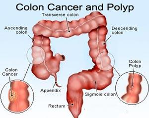 نشانه های سرطان روده بزرگ و نحوه تشخیص آن