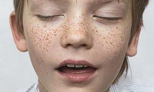 کک و مک چیست و به چه طریقی درمان می شود؟
